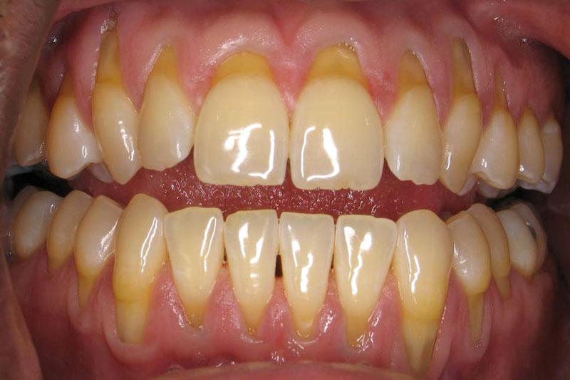 Tình trạng tụt lợi có thể xảy ra ở cả hàm trên và hàm dưới