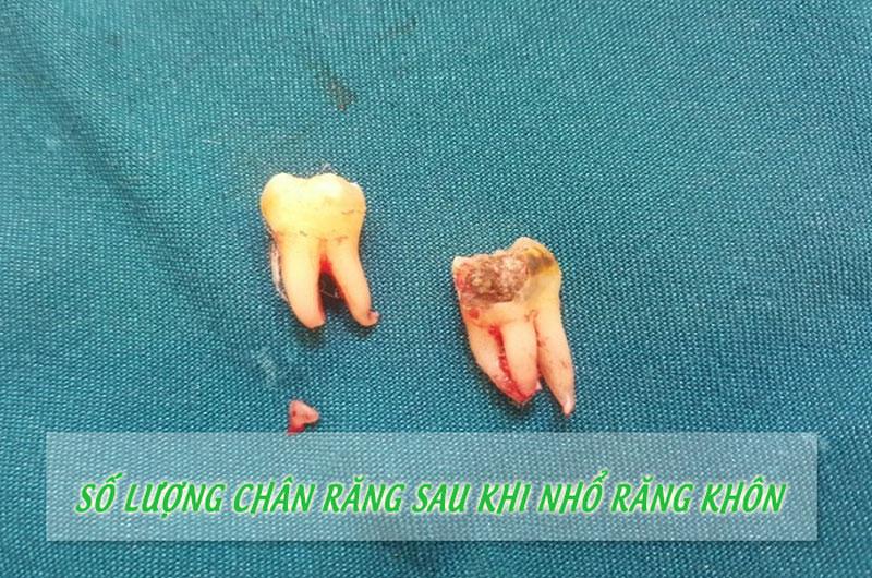 Có thể đếm số chân răng sau nhổ răng khôn để xác nhận