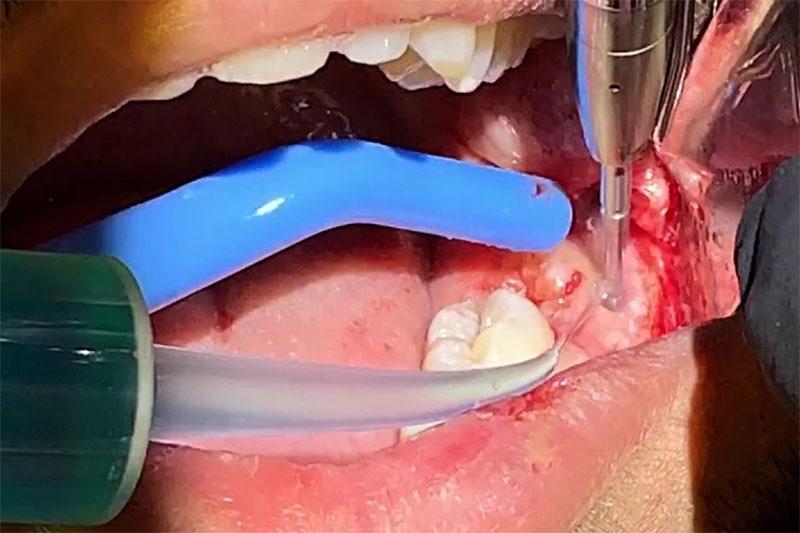 Bác sĩ tay nghề kém có thể nhổ răng làm sót chân răng