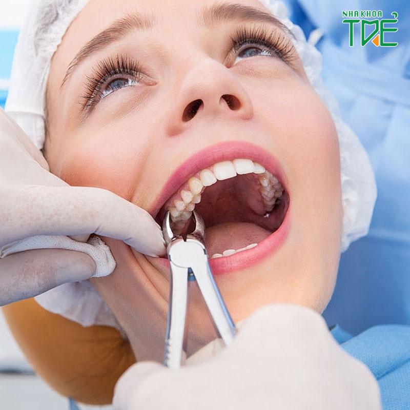Nhổ răng khôn có ảnh hưởng đến thần kinh không?
