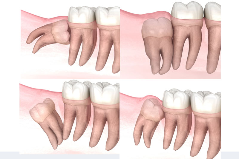 Răng khôn nằm ngang, mọc lệch, mọc ngầm cần nhổ bỏ sớm