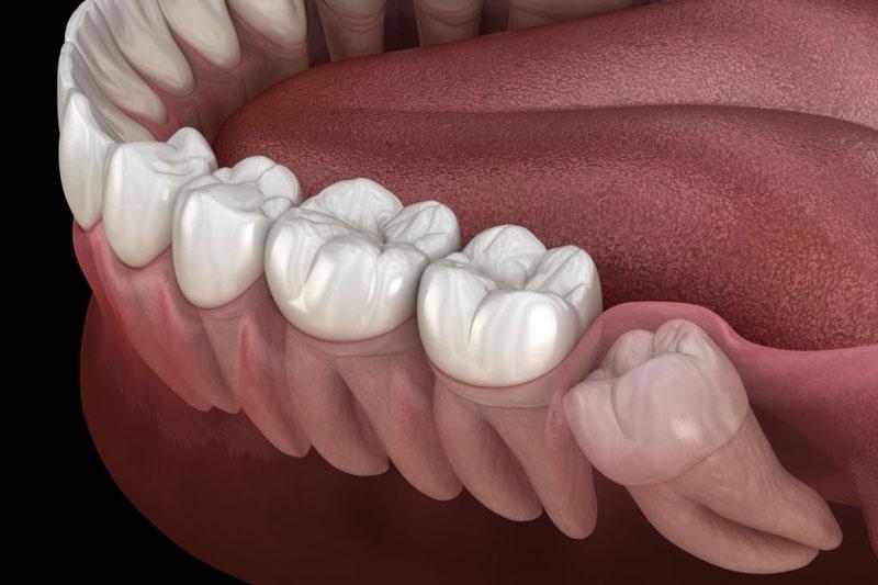 Răng khôn nằm ở vị trí trong cùng trên cung hàm
