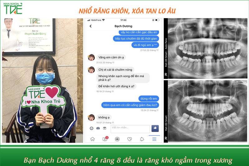 Kinh nghiệm nhổ răng khôn không đau tại Hà Nội
