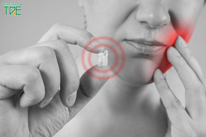 Nếu nhổ răng khôn sau 1 tuần vẫn đau hãy lưu ý những vấn đề này