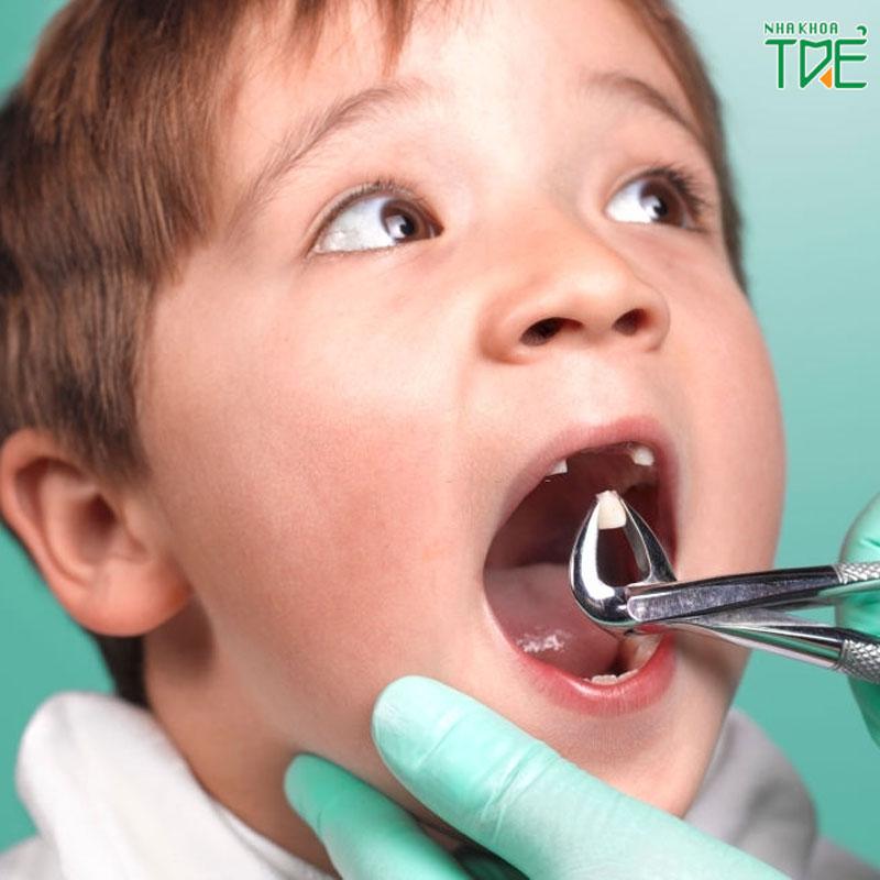 Nhổ răng sữa cho trẻ đúng cách, đúng thời điểm như thế nào?