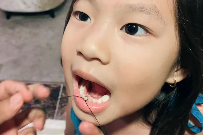 Có thể dùng chỉ để nhổ răng cho bé