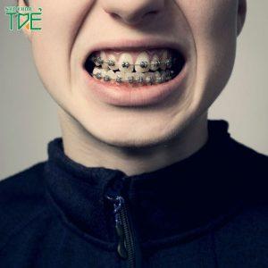 Niềng răng bị ê buốt là do đâu? Cách khắc phục như thế nào?