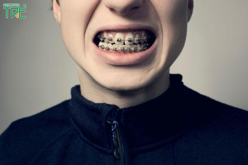 Niềng răng bị ê buốt sẽ chỉ kéo dài trong tuần đầu tiên sau niềng