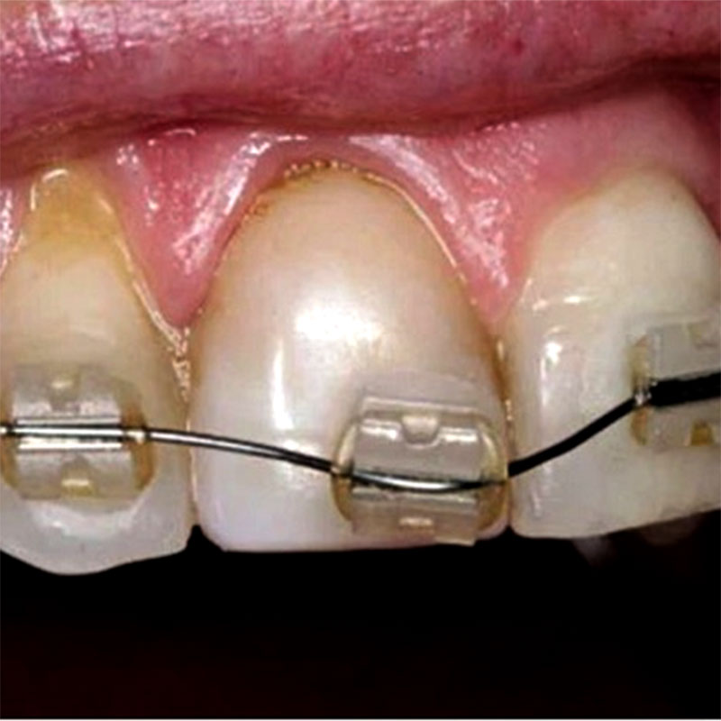 Niềng răng bị rơi mắc cài có sao không? Xử lý như thế nào?