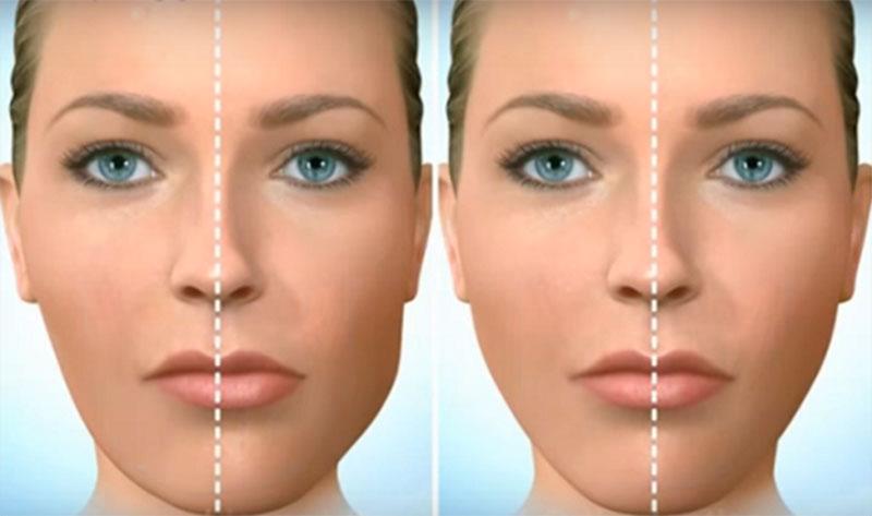 Niềng răng lệch khớp cắn giúp khuôn mặt cân đối, hài hòa hơn