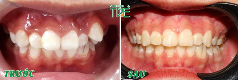 Hàm răng sau niềng răng chỉnh nha trở nên đều đẹp và thẳng hàng