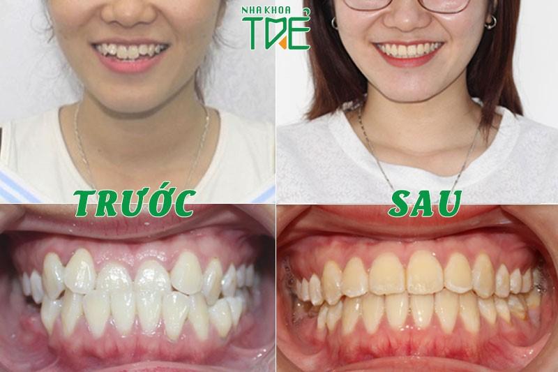 Kết quả niềng răng móm (khớp cắn ngược)