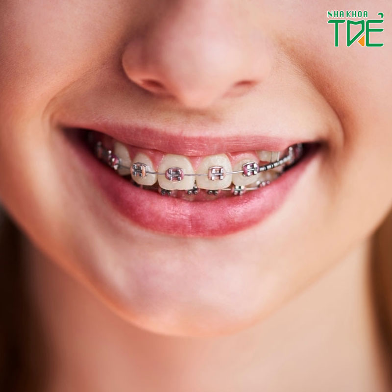 Niềng răng có nguy hiểm không? Làm thế nào để niềng răng an toàn, không biến chứng
