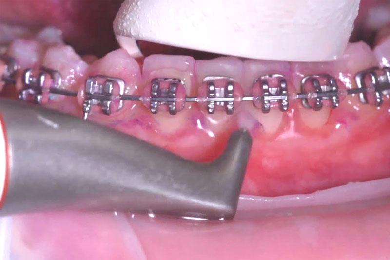 Niềng răng sai kỹ thuật gây nguy hại cho sức khỏe răng miệng