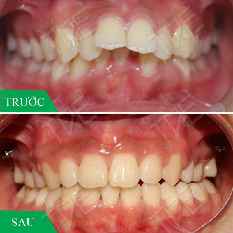 Răng hô vẩu là gì? Niềng răng bị vẩu với mức giá tốt nhất năm 2020
