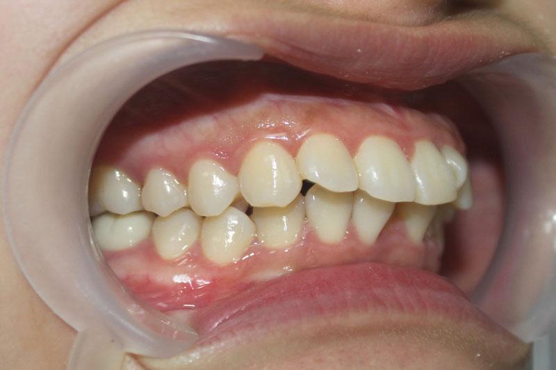Răng hô vẩu làm ăn nhai khó khăn