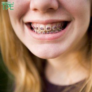Các phương pháp niềng răng hiện nay và mức giá chi tiết