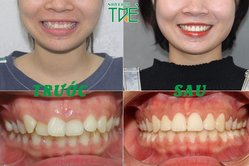 Sau chỉnh nha các răng sẽ dịch chuyển về vị trí đều đẹp trên cung hàm