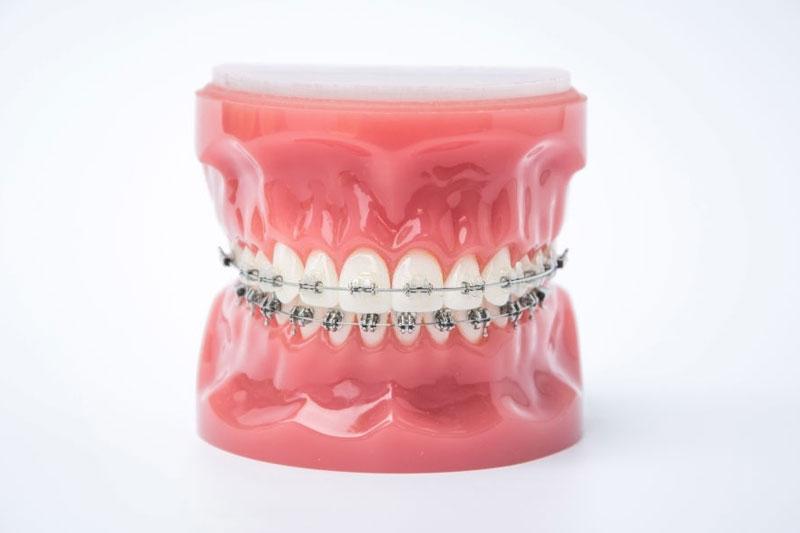 Niềng răng mắc cài sứ và niềng răng mắc cài kim loại