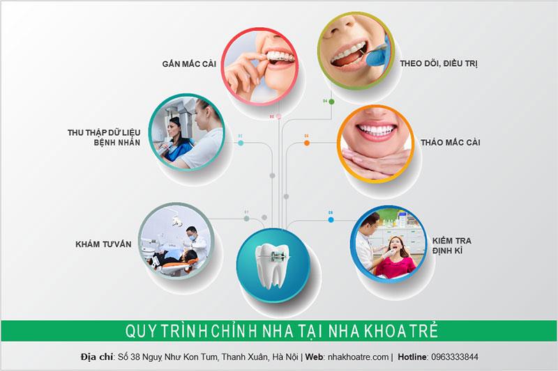 Quy trình niềng răng chỉnh nha tại Nha khoa Trẻ