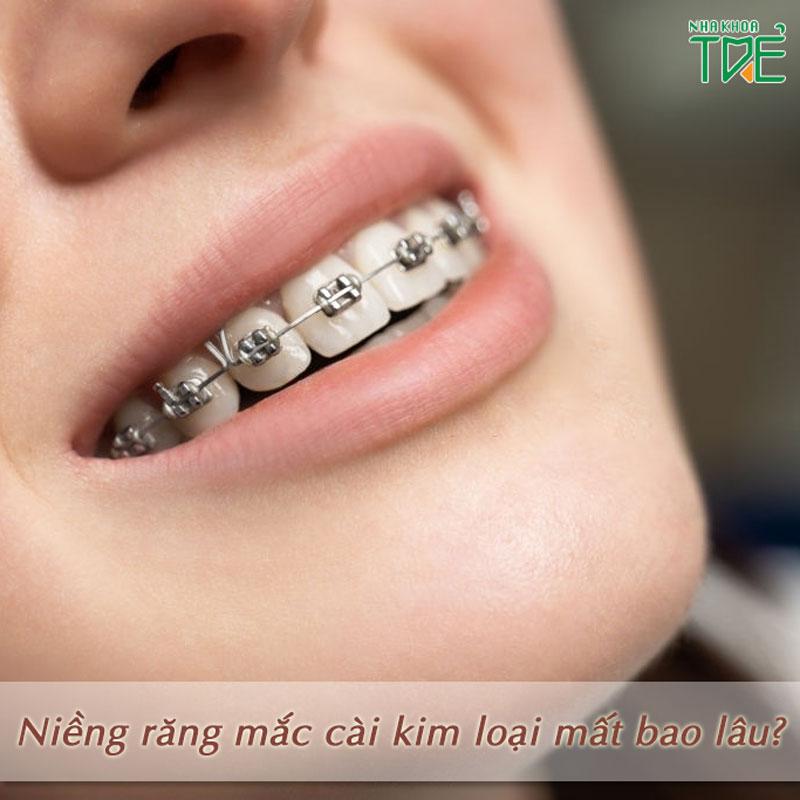 Đeo niềng răng mắc cài kim loại bao lâu thì có thể tháo niềng?