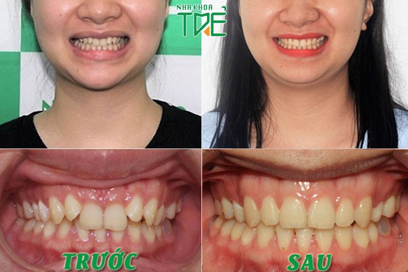 Kết quả niềng răng khấp khểnh, lệch lạc