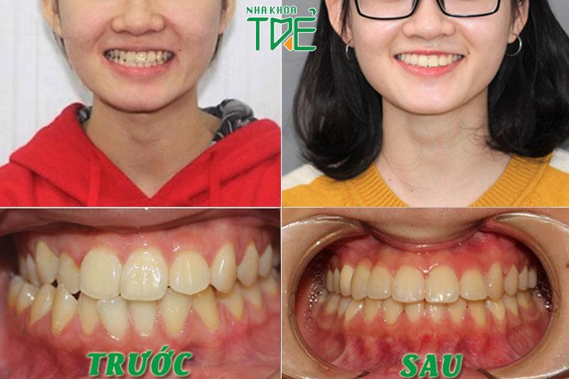 Kết quả niềng răng khớp cắn chéo tại Nha khoa Trẻ