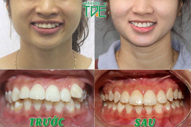 Kết quả niềng răng khớp cắn hô vẩu của khách hàng Nha khoa Trẻ