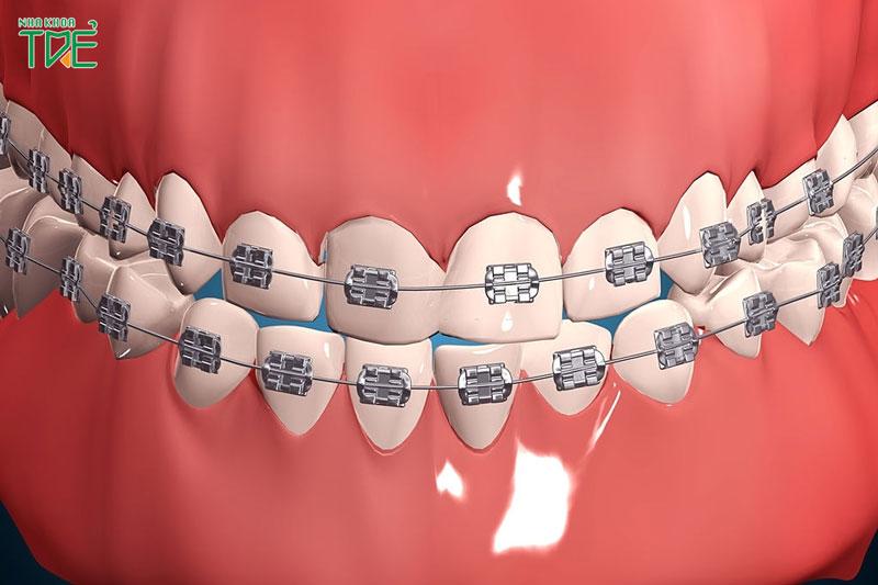 Niềng răng mắc cài kim loại tự buộc có tốt hơn mắc cài kim loại thường hay không