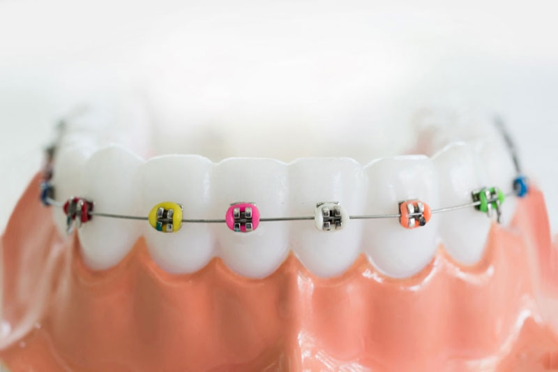 Niềng răng mắc cài kim loại thường sử dụng dây thun cố định dây cung