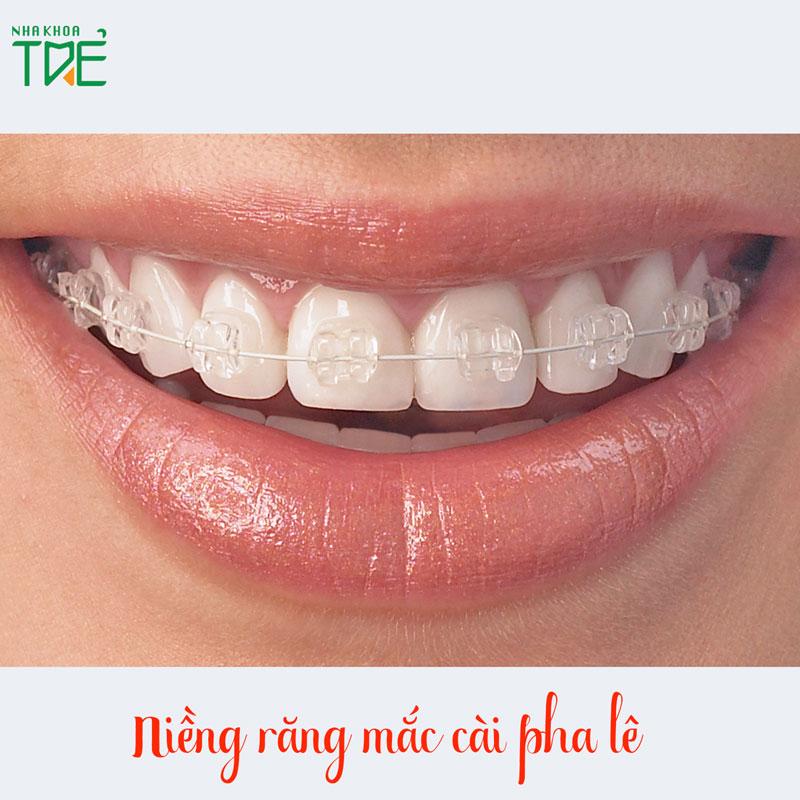 Niềng răng mắc cài pha lê có tốt hơn mắc cài kim loại, mắc cài sứ không?