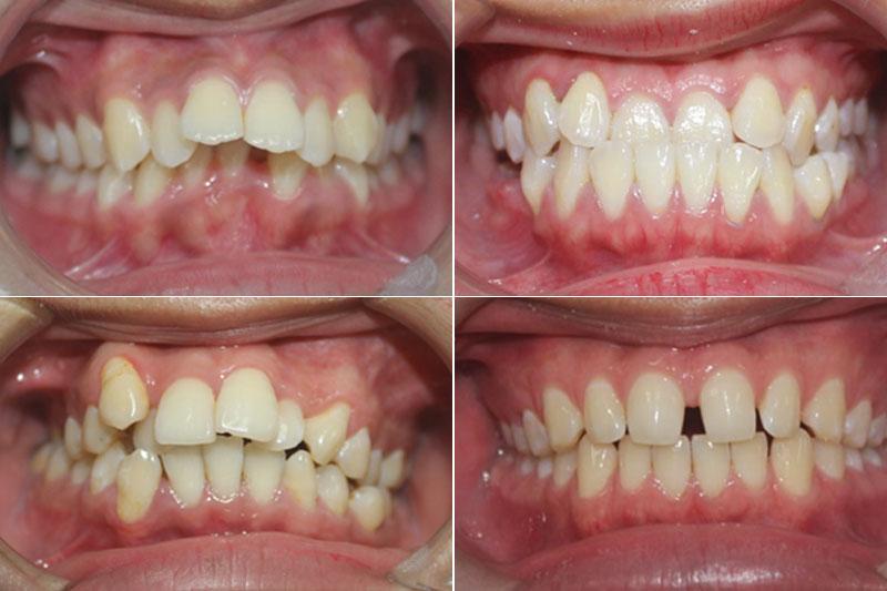 Các trường hợp niềng răng mắc cài pha lê