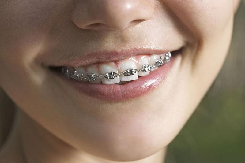 Niềng răng mắc cài kim loại có độ bền chắc cao hơn mắc cài pha lê