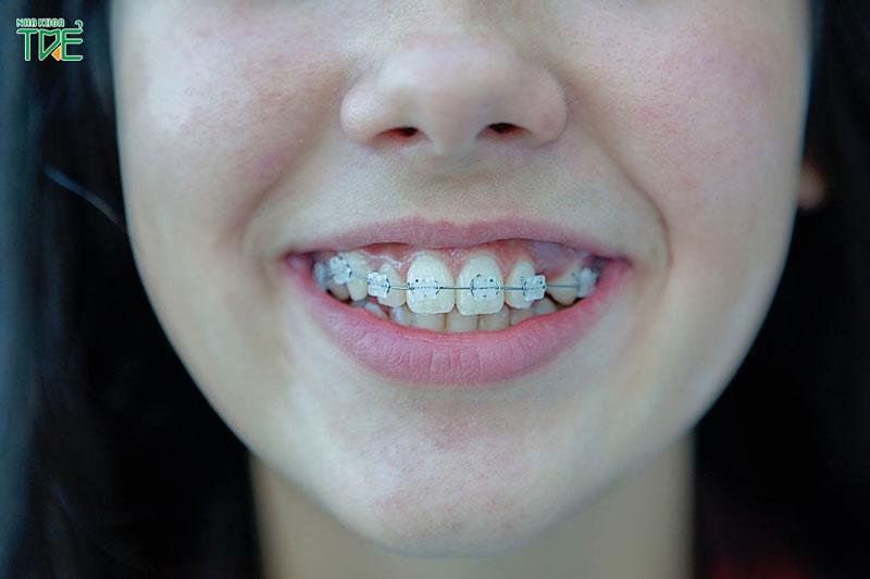 Niềng răng mắc cài sứ có đau không?