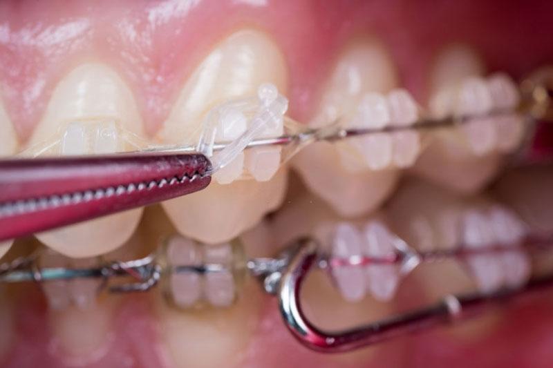 Niềng răng mắc cài sứ có cảm giác đau nhức nhẹ trong các giai đoạn siết lực, thay thun