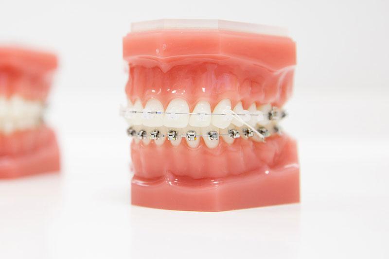 Niềng răng mắc cài sứ tự buộc có tính thẩm mỹ cao hơn mắc cài kim loại