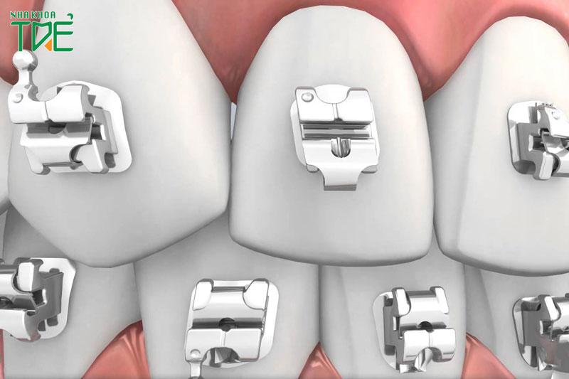 Niềng răng mắc cài tự buộc, tự khóa giá bao nhiêu tiền?