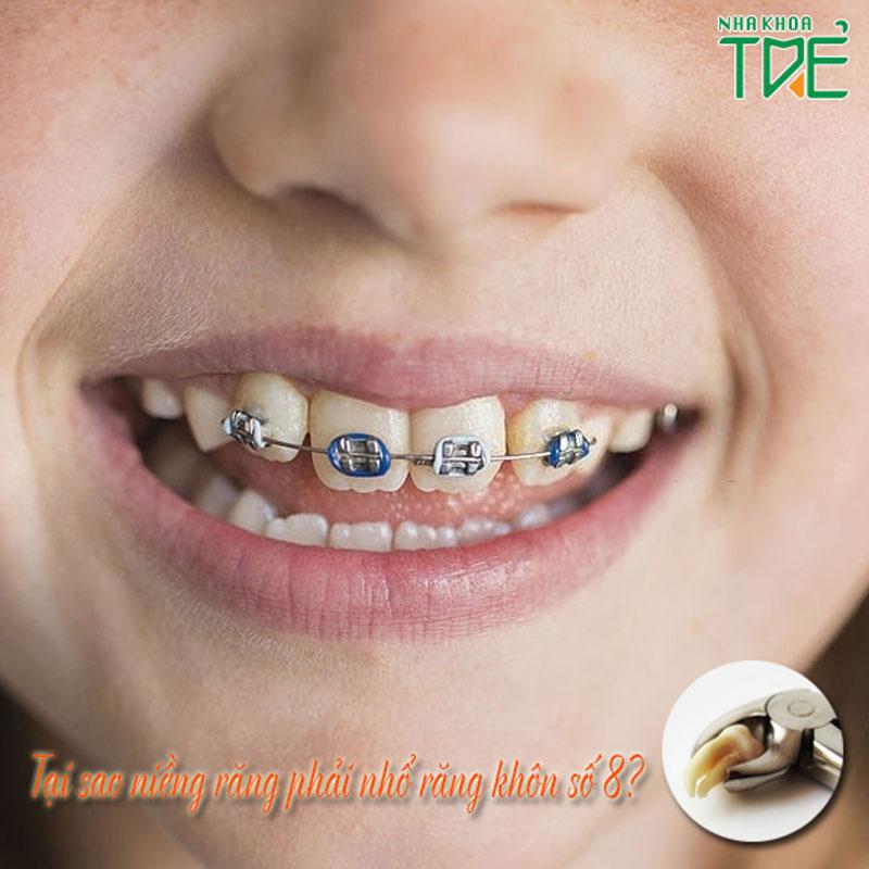 Tại sao niềng răng phải nhổ răng số 8 (răng khôn)?