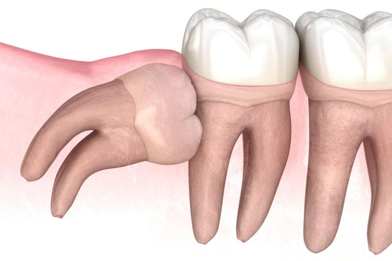 Răng mọc lệch cần nhổ răng khôn trước khi niềng răng
