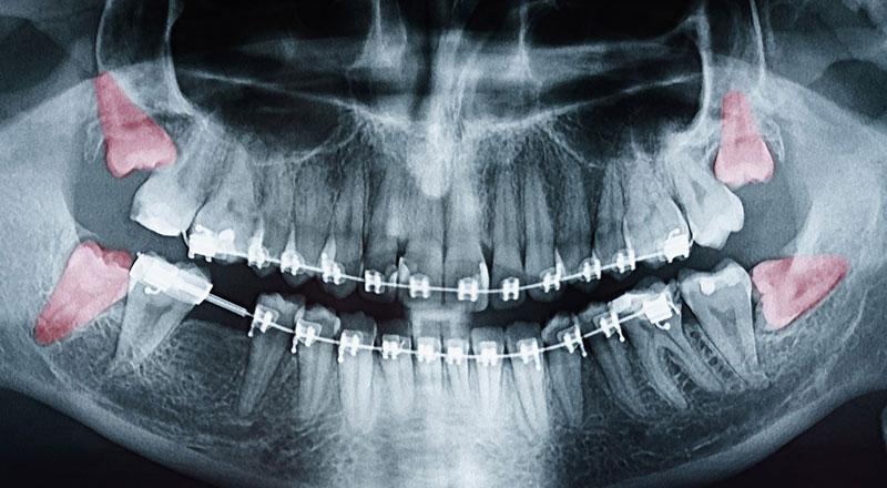 Niềng răng phải nhổ răng khôn để ngăn ngừa tái phát lệch lạc