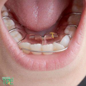 Niềng răng tháo lắp kim loại có hiệu quả không?