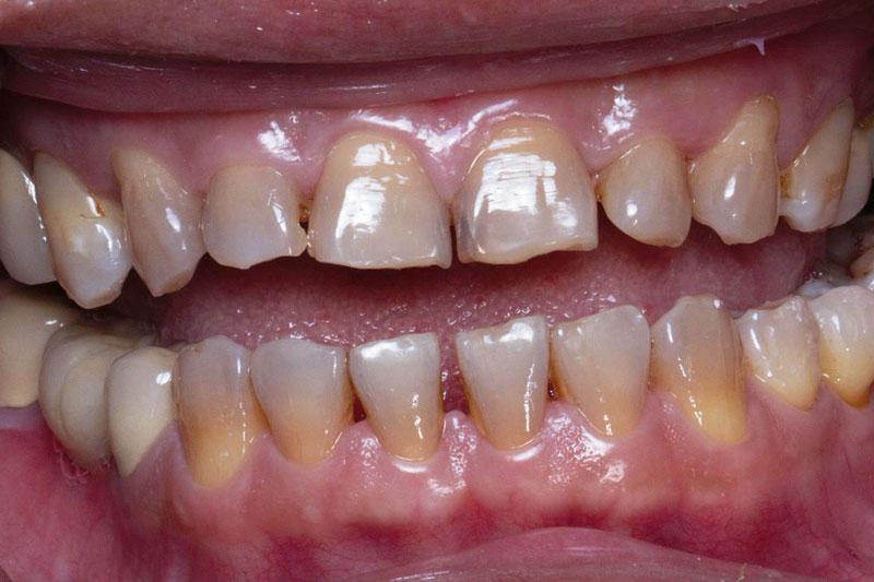 Bọc răng sứ nên thực hiện trong các trường hợp răng sẫm màu, sứt mẻ