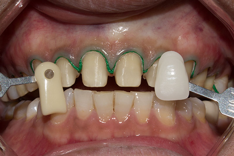 Mài cùi răng phải đảm bảo tỷ lệ chính xác để hạn chế tác động đến cấu trúc của răng