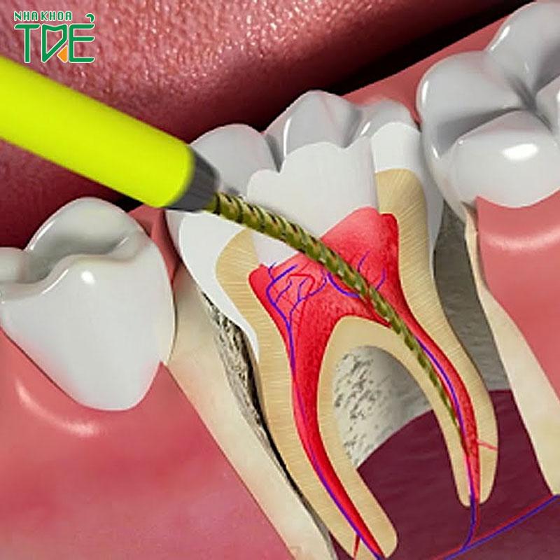Răng đã lấy tủy có niềng răng được không?