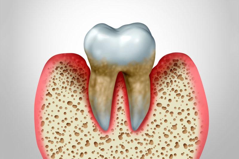 Răng đã lấy tủy có niềng răng được không phụ thuộc vào sức khỏe của chiếc răng đó