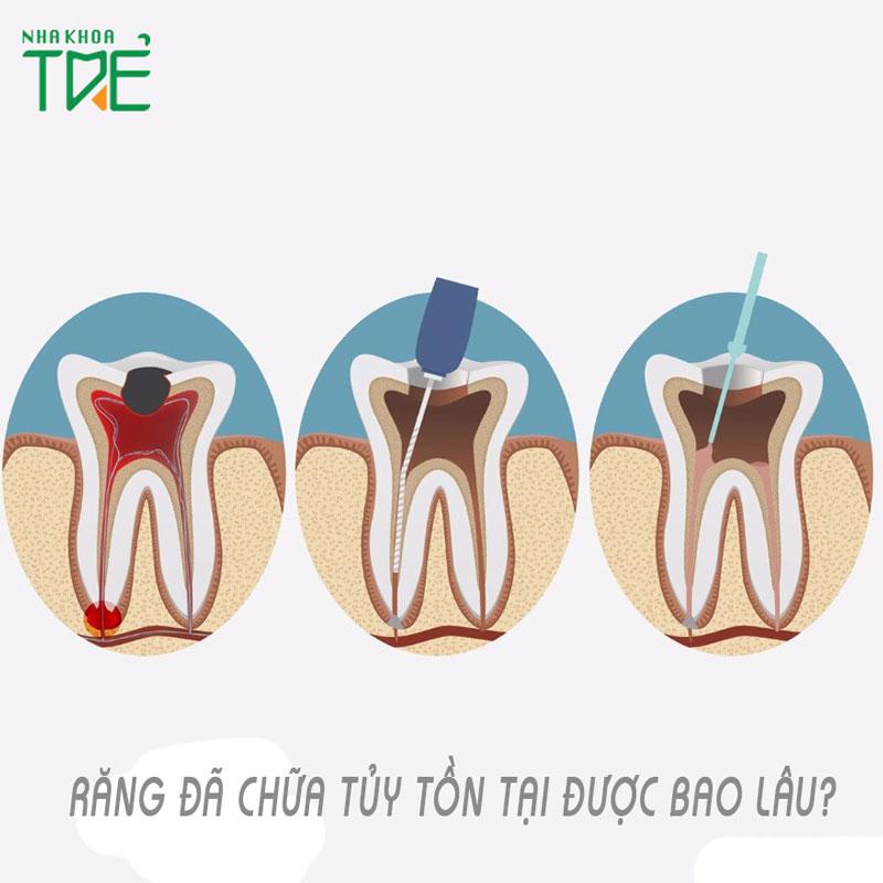Răng đã lấy tủy tồn tại được bao lâu?