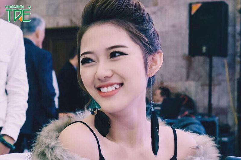 Răng khểnh là gì? Răng khểnh cười sao cho đẹp?