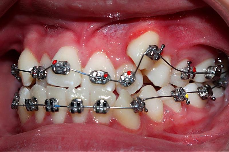 Niềng răng khểnh là cân thiết để bảo vệ sức khỏe răng miệng