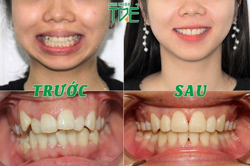 Kết quả niềng răng khểnh tại Nha Khoa Trẻ