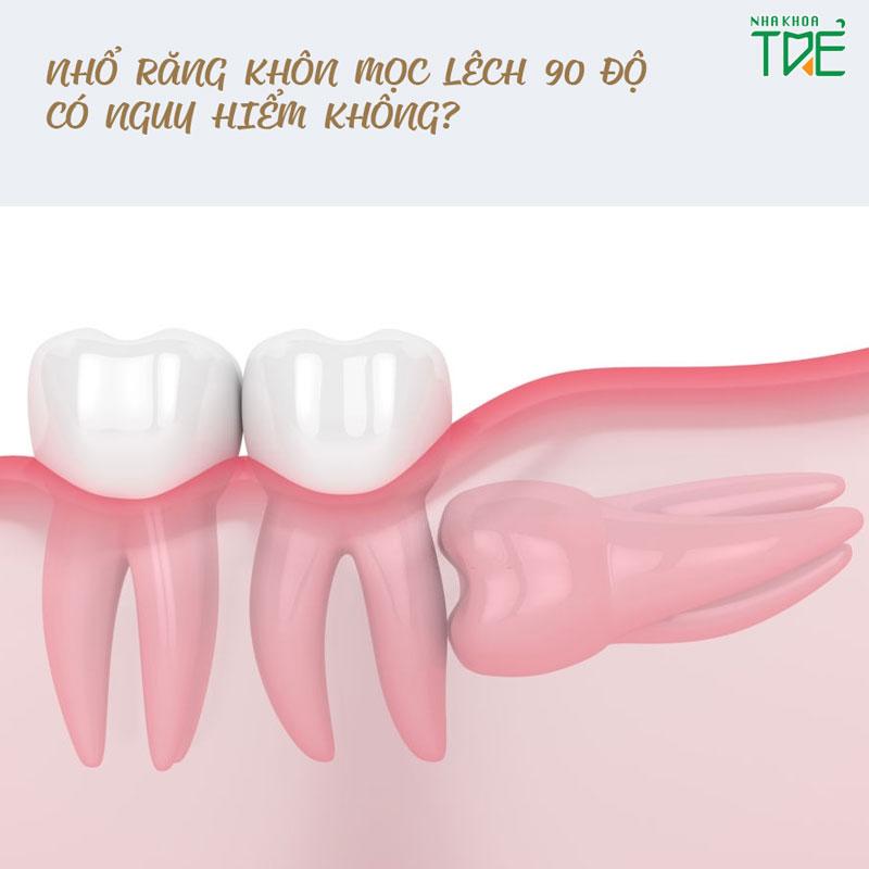 Nhổ răng khôn mọc lệch 90 độ có nguy hiểm không?